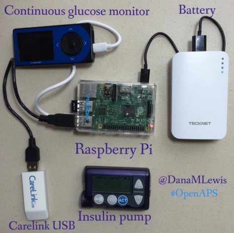 What-an-OpenAPS-looks-like-by-@DanaMLewis1.png