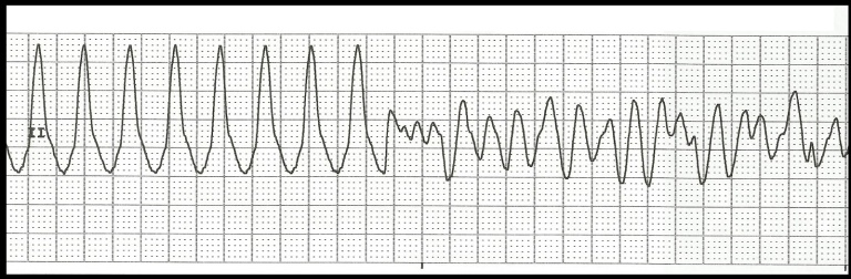 Ventricular rhythm 13a Ventricular tachycardia changing to ventricular fibrillation