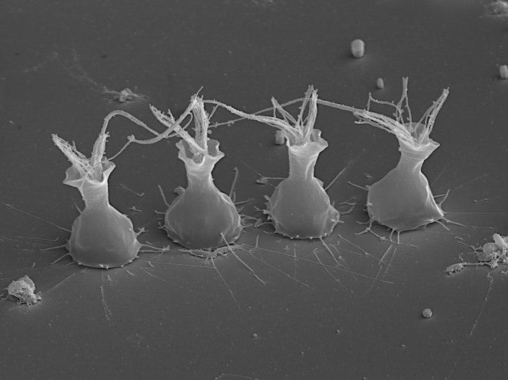 Choanoflagellates1