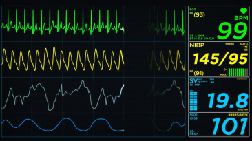 medical-monitor-screen-heart-attack-loop_x1dqo5z9__F0000.png