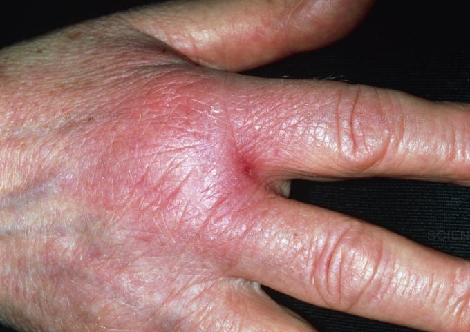 hand cellulitis.jpg