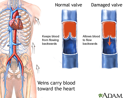 veins.jpg